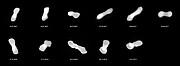 L'astéroïde Kleopatra observé sous divers angles (figure annotée)